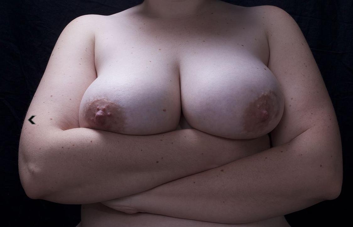OMS Cancer du sein: prévention et lutte contre la